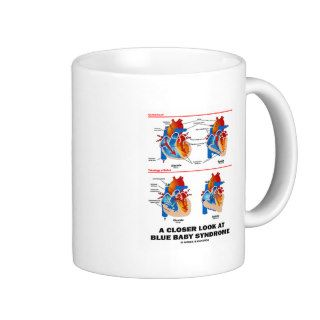 A Closer Look At Blue Baby Syndrome (Heart) Coffee Mug